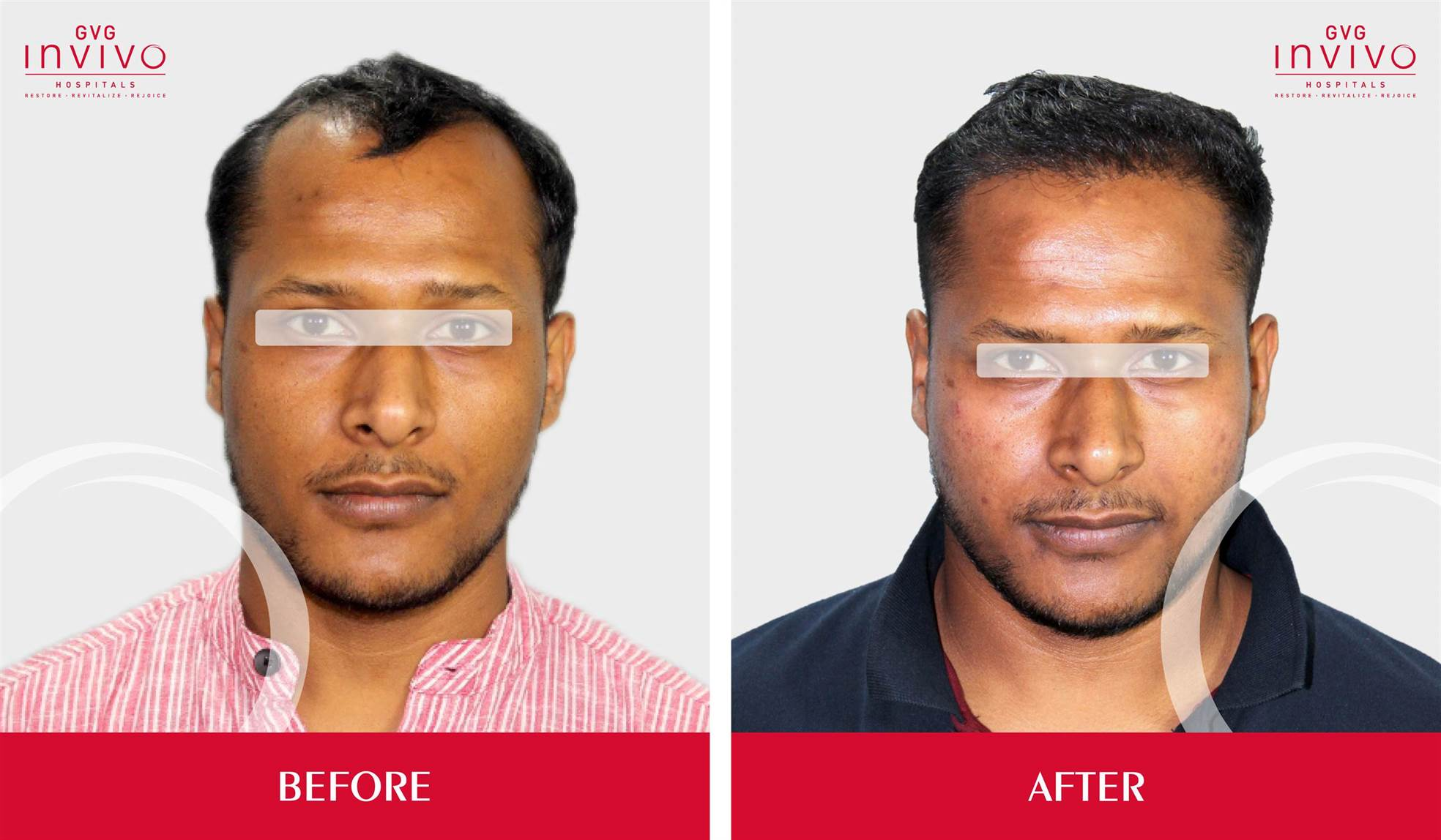 Best Hair Transplanation in bangalore
