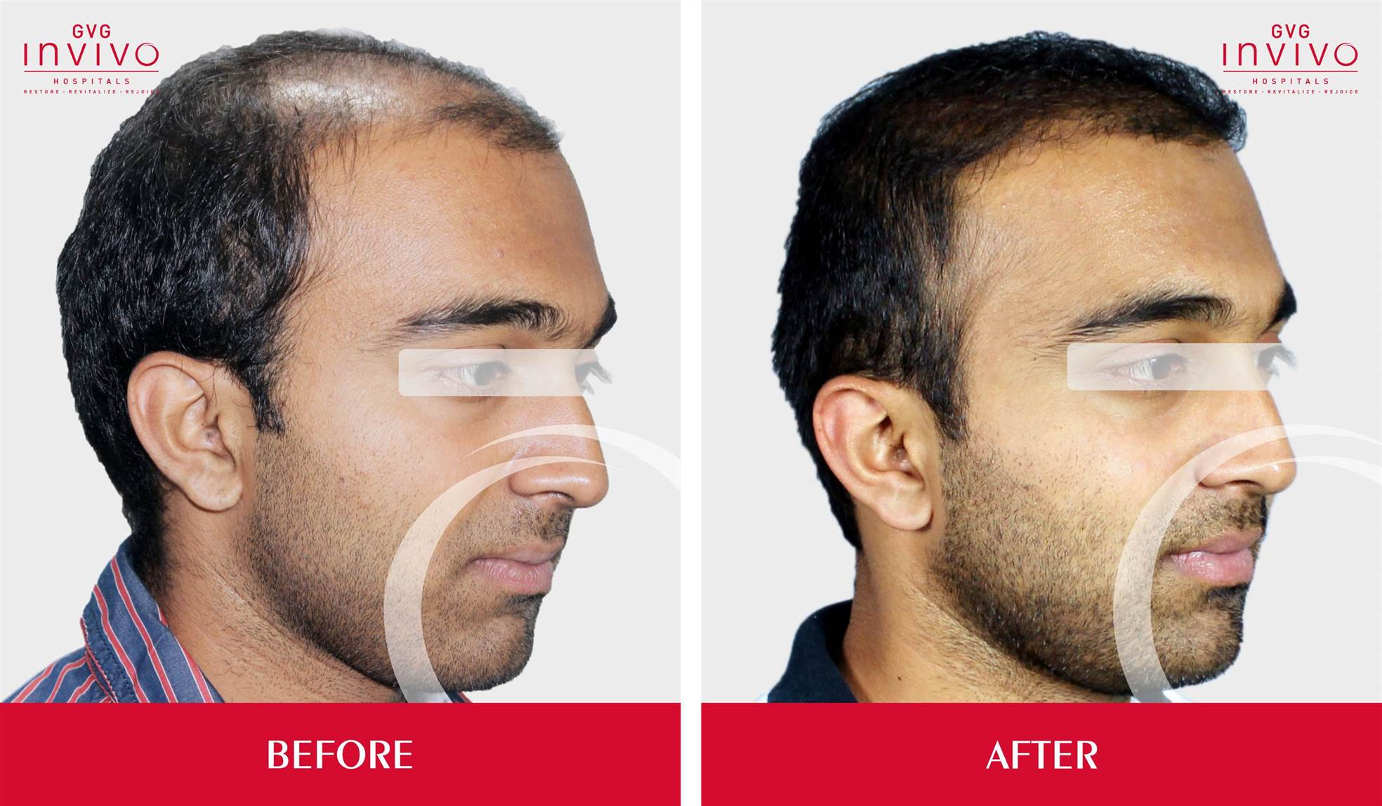 PRP FUE Hair Transplanation in bangalore