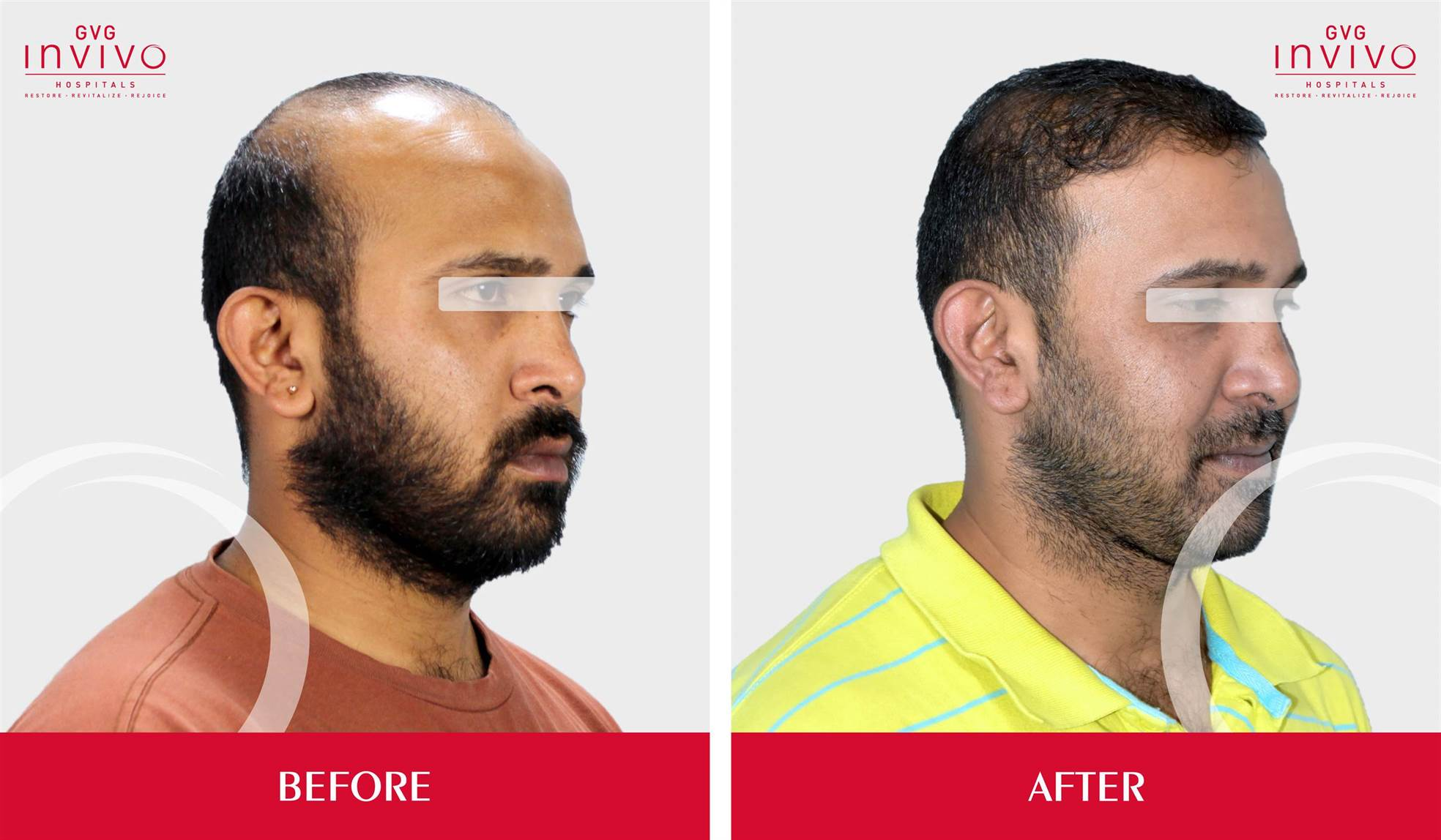 Best PRP, FUE Hair Transplanation in bangalore